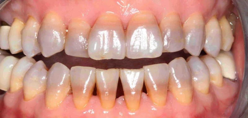 manchas-dientes-tetraciclinas-e1444128153427
